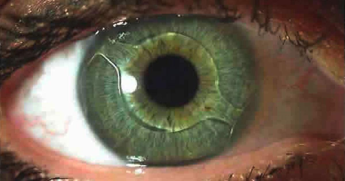implanta-lentes