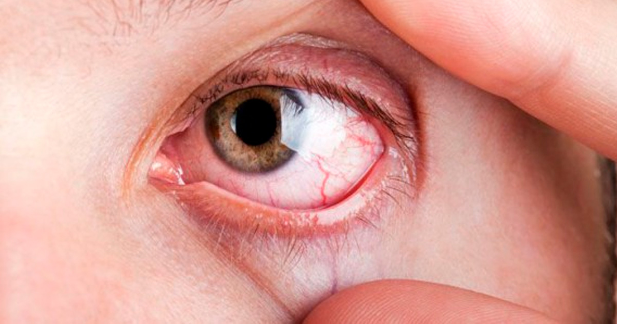 glaucoma-2-nueva